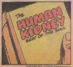 HtD12-Kidney